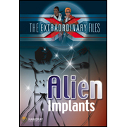 The Extraordinary Files - Alien Implants